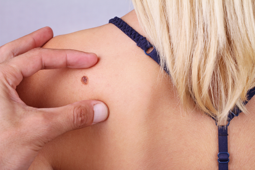 Doctor, dermatologist, hands examines a birthmark of patient. Checking benign moles